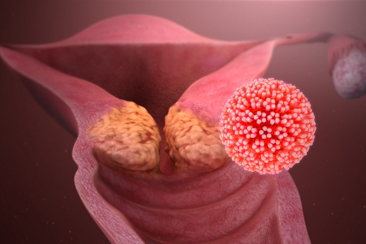 HPV in Men and Women – What is Human Papilloma Virus?